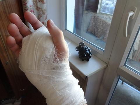 Как лечить артроз кисти руки симптомы лечение диагностика