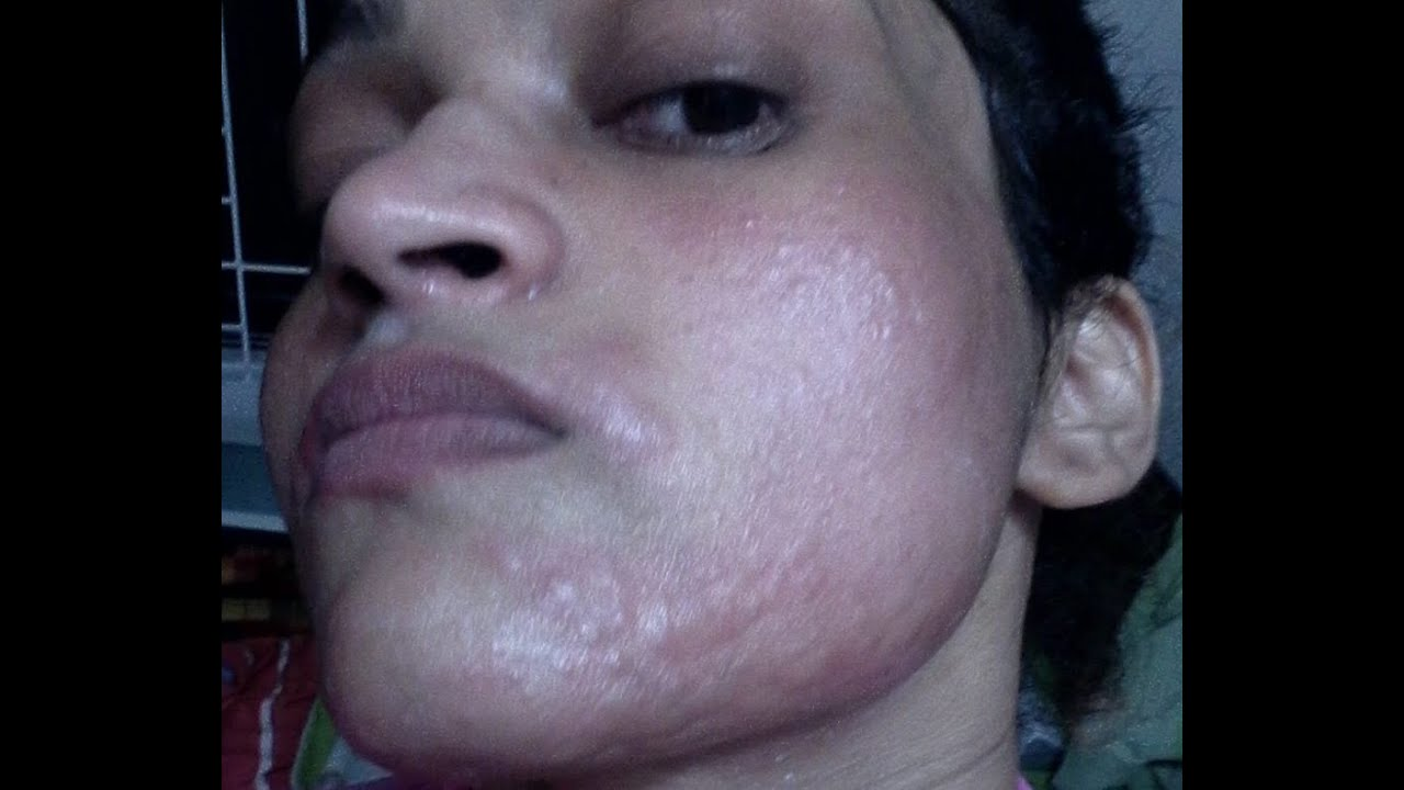 How I Got Rid Of My Skin Allergy Remedy To Get Rid Of