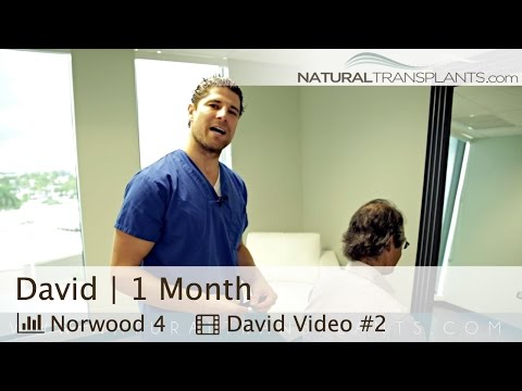 FUE Hair Transplant and FUT Strip Scar Truth - Miami, Florida (David)