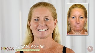 Y LIFT®: Non-Surgical Facelift | San Diego's Nowak Aesthetics