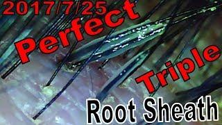 Hair Root Close-Up Part.60 いきなりトリプル!透明毛根鞘【Perfect Root-Sheath Triple!】