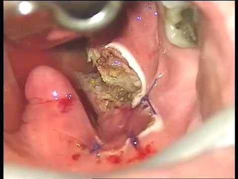 Snoring surgery -Dr Rozenman Dan Uvulopharyngoplasty with coblation