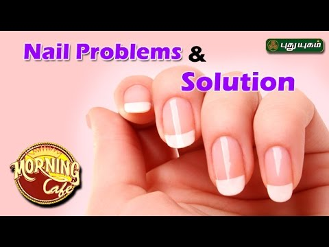 Tips to prevent Common Nail Problems அழகு கலை For Beauty Morning Cafe 25-04-2017