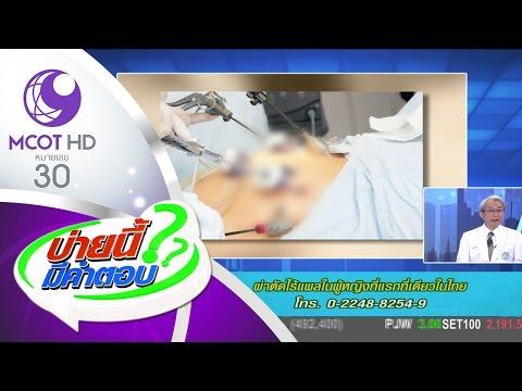 ย้อนหลัง บ่ายนี้มีคำตอบ (10 มี.ค.60) ผ่าตัดไร้แผลในผู้หญิงที่แรกที่เดียวในไทย | ช่อง 9 MCOT HD