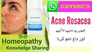 Acne Rosacea ! Red Pimples ! Homeopathic medicine for Rosacea ??