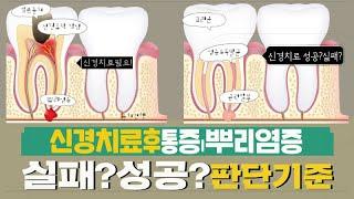 치아신경치료후 통증ㅣ …
