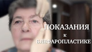Блефаропластика // Показания