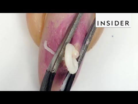 Pimple Popping Nails