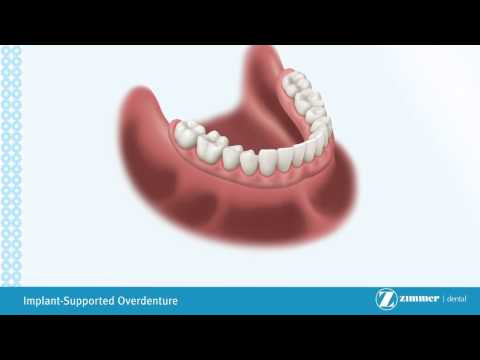 dental-implant-overdentures