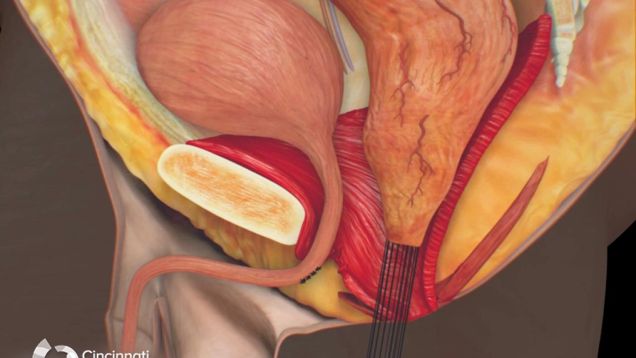 cum arată viermii de pin în anus