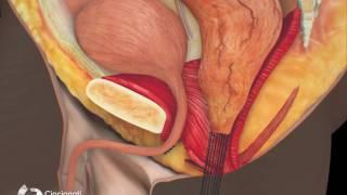 Surgical Treatment of Bulbar Urethral Fistula | Cincinnati Children's