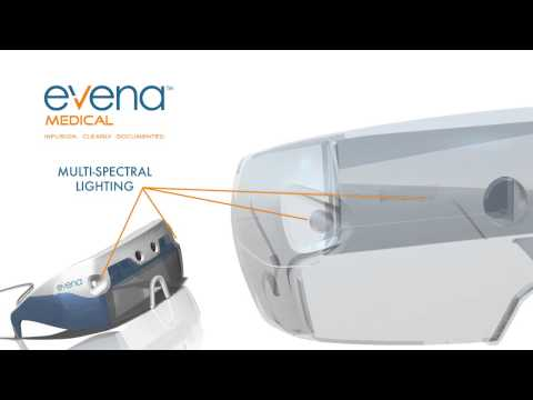 Evanas 'X Ray Glasses' Can See Through Skin (VIDEO)