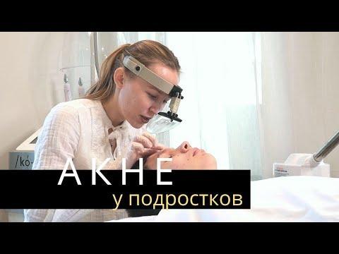 АКНЕ. Прыщи у подростков | Лечение Акне у косметолога | Anastasia Talan