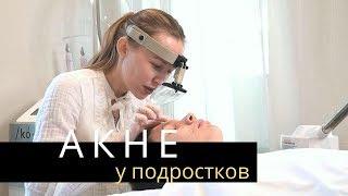 АКНЕ Прыщи у подростков Лечение Акне у косметолога Anastasia Talan