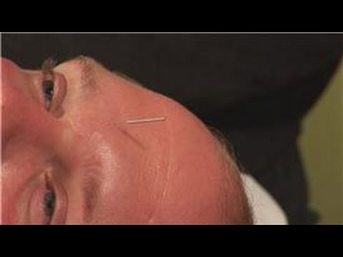 Acupuncture Treatments : Acupuncture for Hay Fever