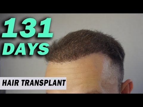 FUE Hair Transplant 131 DAYS (post op) Istanbul, Turkey GROWTH STAGE