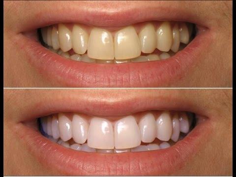 Dentes Brancos Na Hora O Melhor Clareamento Dental Youtube