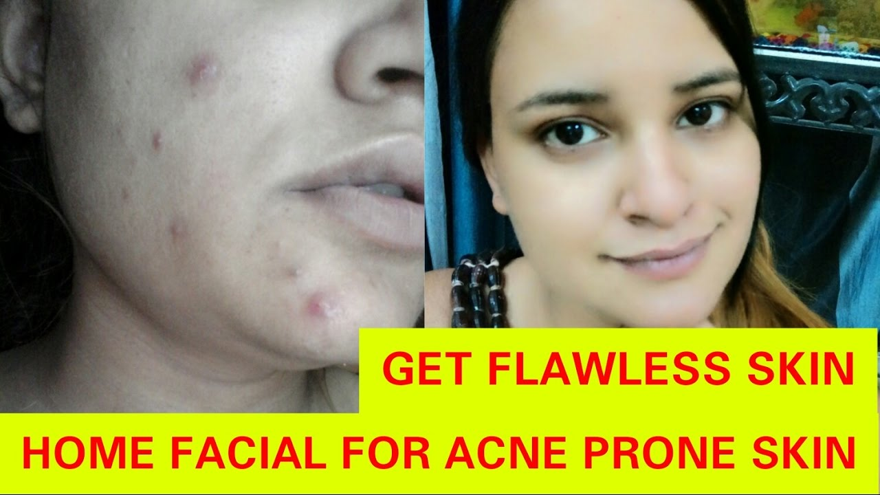 Facial for acne