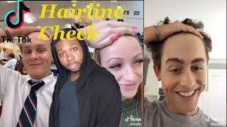 Hey Yo Hairline Check Tiktok Reaction