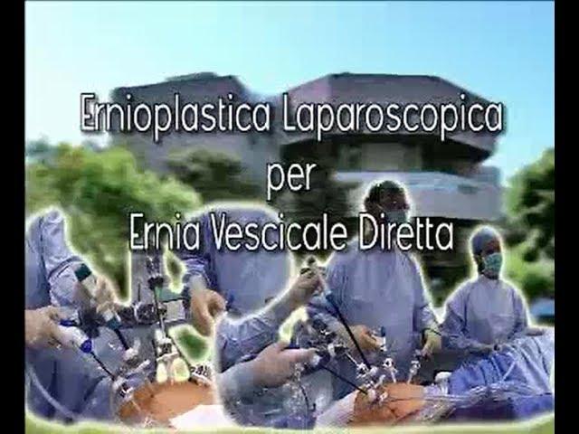 Laparoscopic surgery - Ernioplastica laparoscopica per ernia vescicale diretta