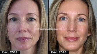 Anti-Aging: Skincare vs Procedures | My 3-Year Transformation | Full Disclosure!