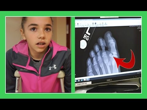 KATIE GETS AN X-RAY ON HER TOE | Flippin' Katie