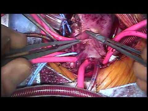 Complete Repair TGA VSD Hypoplastic Right Arch (2015)