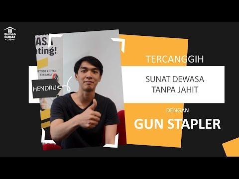 Tempat Sunat Laser Surabaya