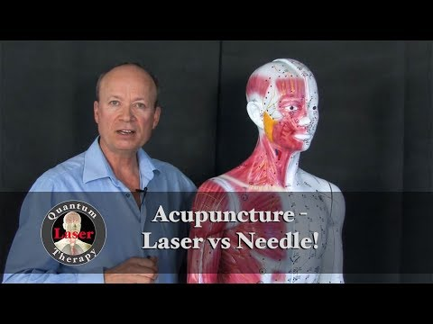 Acupuncture – Laser vs Needle Therapy