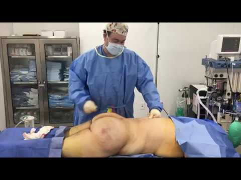 1620 cc to Each Buttock for Male BBL by Dr. Hughes in Los Angeles