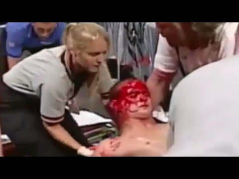 Download OMG Brock Lesnar Almost Killed this one leg man, no mercy 18+