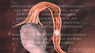 Воспалительные заболевания органов малого таза