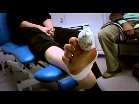 Losing a Toe (Part 1) - Bizarre ER