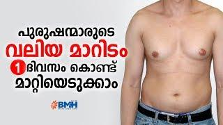 പുരുഷന്മാരുടെ വലിയ മാറിടം 1 ദിവസം കൊണ്ട് മാറ്റിയെടുക്കാം | Gynecomastia Treatment