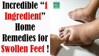 """Incredible """"1 Ingredient"""" Home Remedies for Swollen Feet !"""