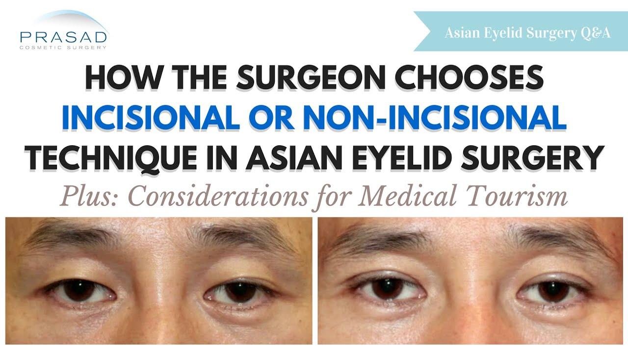 Asian Double Eyelid Surgery in New York | Amiya Prasad MD