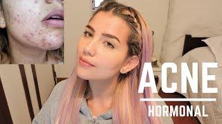 Acné | Mi Historia, Tratamiento, Tips para curarlo y evitar cicatrices