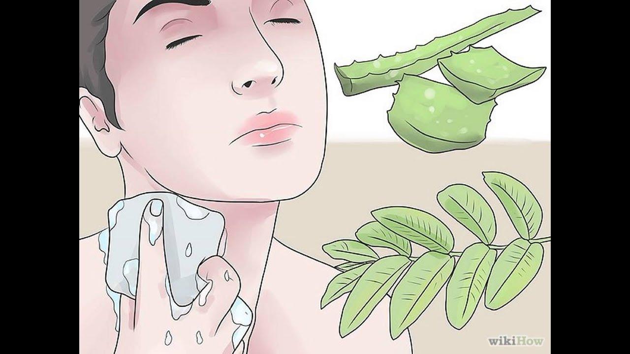 sintomas de un quiste sebaceo infectado
