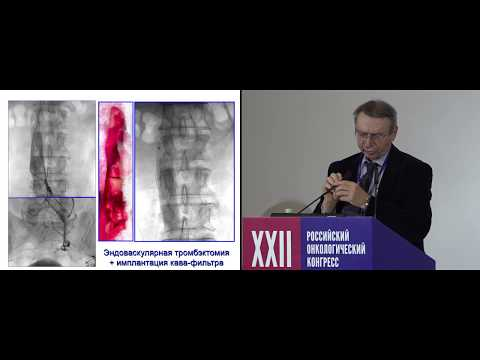 Взгляд сосудистого хирурга на проблему тромбоза