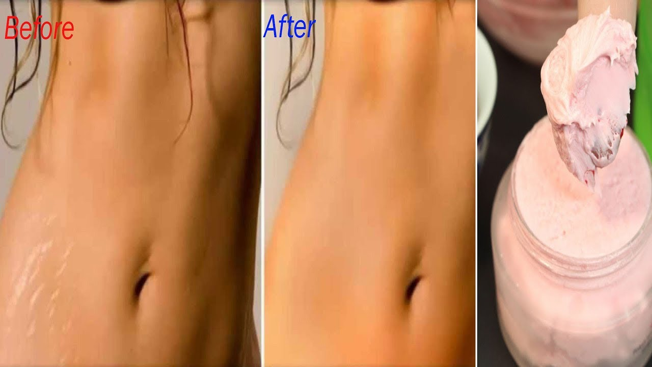 Remove Stretch Marks Permanently With This Natural Homemade Cream