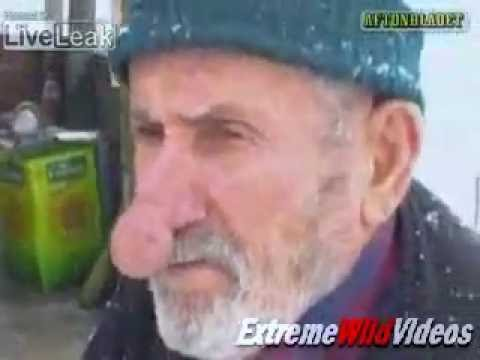 Man With The Worlds Biggest Nose - YouTube
