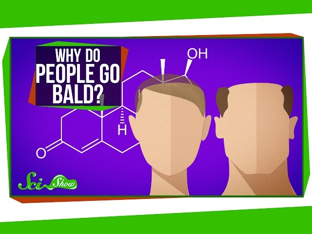 Why Do People Go Bald?