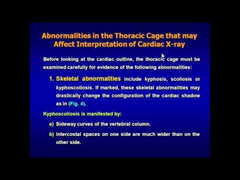 Cardiac Radiology (X-Ray)