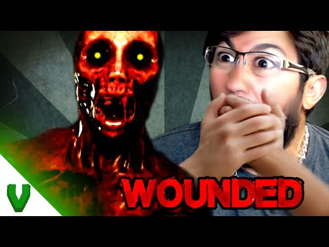 Instant Heart Attacks! Amazing Indie Horror Game | WOUNDED