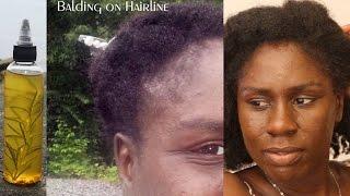 Grow Hair with Botanical Infusion Healthy Hair Oil | How To Use | Kriya Botanicals