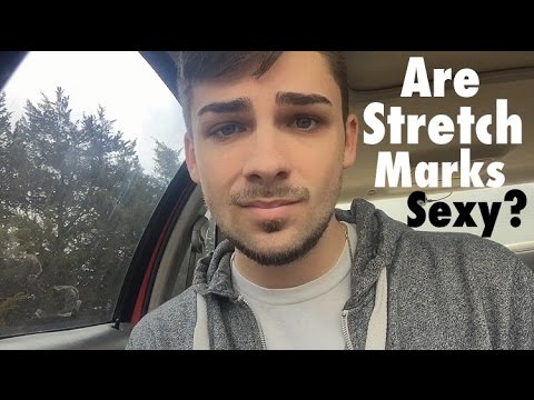 Are Stretch Marks Sexy?