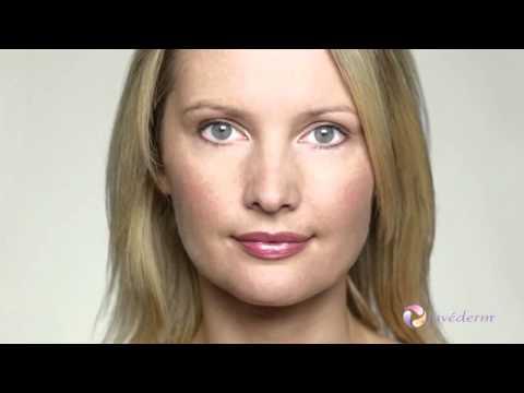 Soft Lift combining facial fillers and neuromodulators   Dr Kacem Paris London