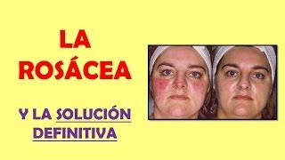 ROSACEA CURA DEFINITIVA   LA ROSÁCEA Y LA SOLUCIÓN DEFINITIVA?!