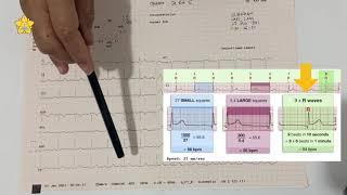 Analisa Electrocardiograph - dr. Sri Murdiati, Sp. JP-FIHA