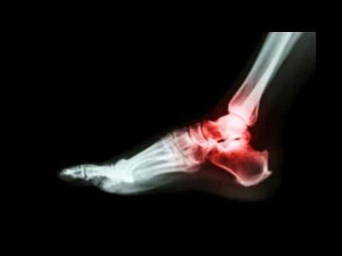 Arthritis in Feet